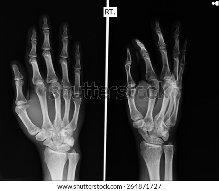 X-ray of hands. #264871727