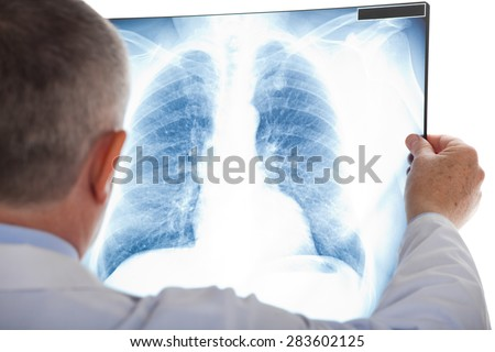 Doctor examining a lung radiography Royalty-Free Stock Photo #283602125