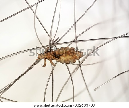 Head lice (louse) on human hair