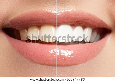 Perfect smile before and after bleaching. Dental care and whitening teeth Royalty-Free Stock Photo #308947793