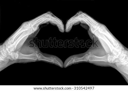 x-ray image of hands making heart symbols. Royalty-Free Stock Photo #310542497