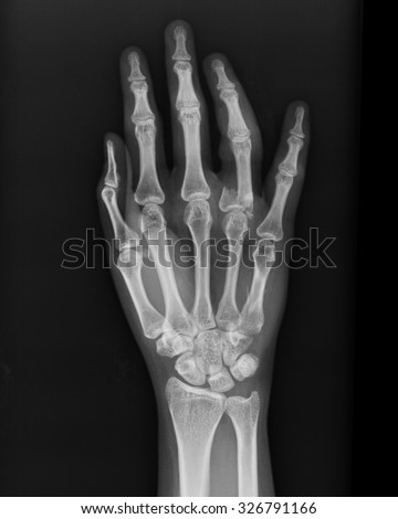 Human hand x-ray - Medical Image. #326791166