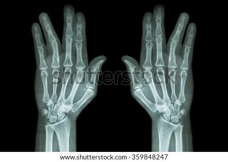 Fracture shaft of proximal phalange of ring finger ( film x-ray both hand AP ) #359848247