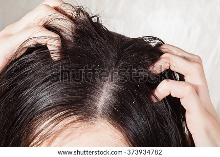 Dander that causes itching scalp Royalty-Free Stock Photo #373934782