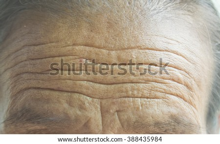 wrinkled forehead on old women #388435984