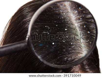 The doctor looks through a magnifying glass at the dandruff on dark female hair Royalty-Free Stock Photo #391710049