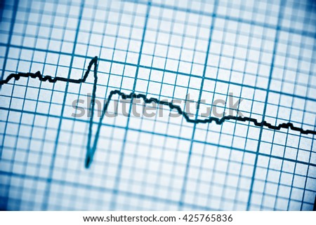 Close up of an electrocardiogram in paper form. #425765836