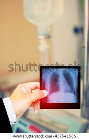 Doctor holding x-ray film for a medical diagnosis in hospital background. #437541586