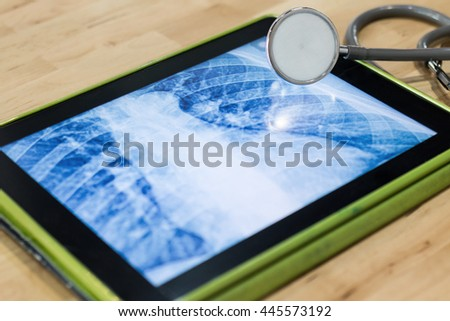 x ray picture in touchscreen device
