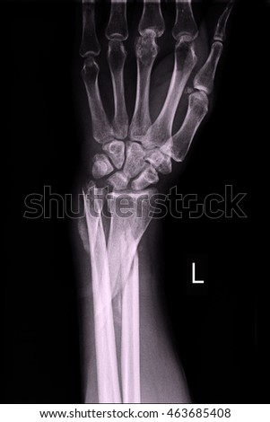 xray left wrist #463685408
