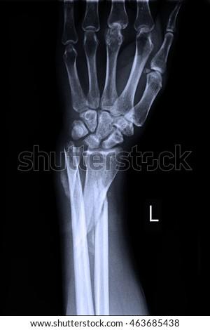 xray left wrist #463685438