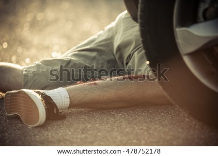 Legs of unidentifiable youth in shorts hit by car with blood dripping from legs on street