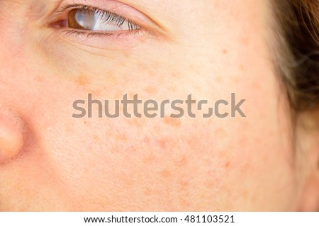 closeup of a woman cheek with liver spot causes by the large exposition sun  Royalty-Free Stock Photo #481103521