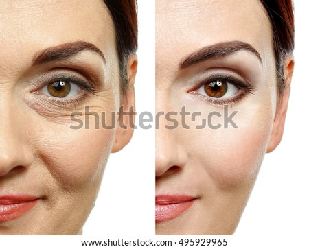 Woman face before and after cosmetic procedure. Plastic surgery concept. Royalty-Free Stock Photo #495929965