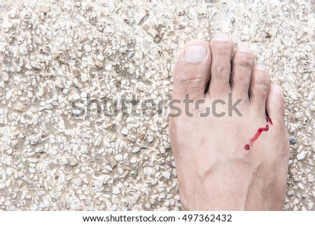 Close up of injury legs of anonymous man. Man inspecting her wounded bleeding foot. Photo of real accidental trauma with real blood. Horizontal color image, copy space #497362432