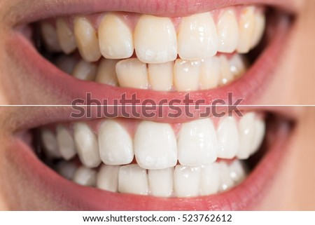 Teeth Whitening Before After Royalty-Free Stock Photo #523762612