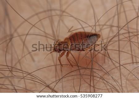 Bedbug on human hand