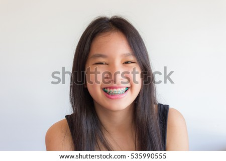 asian girl has braces and she smile happily #535990555