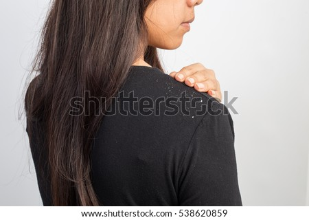 women having dandruff in the hair and shoulder Royalty-Free Stock Photo #538620859