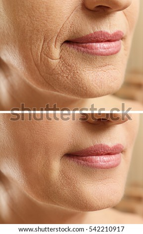 Mature woman face before and after cosmetic procedure. Plastic surgery concept. Royalty-Free Stock Photo #542210917