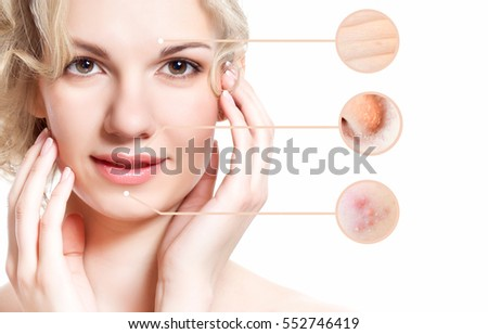 Concept of skincare. Skin of beauty young woman before and after the procedure. Isolated on white background #552746419