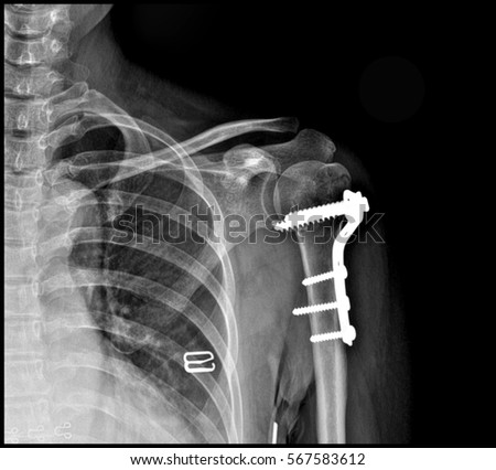 arm fracture fixed X-ray photography