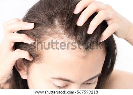 Woman serious hair loss problem for health care shampoo and beauty product concept Royalty-Free Stock Photo #567599218