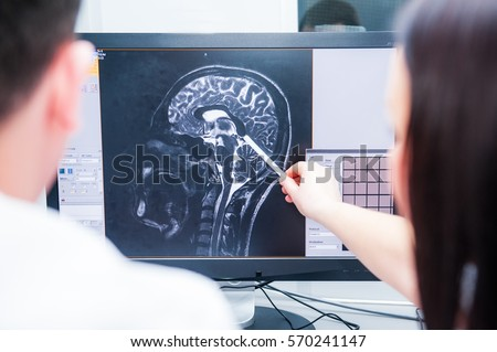 Medicine Brain checking. Doctors consider and discuss magnetic resonance image (MRI) of the brain. Tomography service. Back view, selective focus.