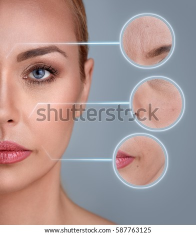 Portrait of woman with zooming detail of skin: damage, acne, wrinkles #587763125