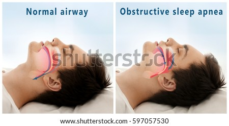 Snore problem concept. Illustration of normal airway and obstructive sleep apnea Royalty-Free Stock Photo #597057530