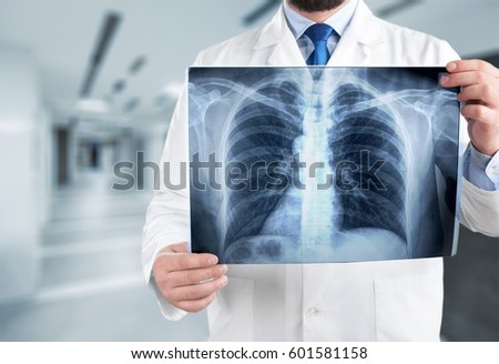 Lungs. #601581158