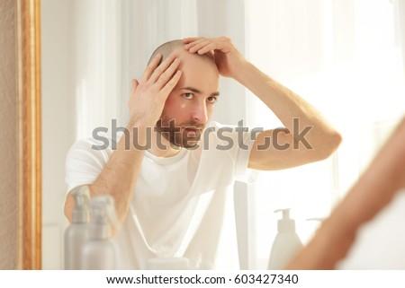 Hair loss concept. Young man looking at mirror #603427340