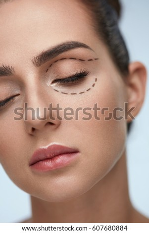Plastic Surgery Operation. Closeup Beautiful Young Woman Face With Fresh Skin And Perfect Makeup On White Background. Female Face With Black Surgical Lines On Eyelids And Under Eyes. High Resolution #607680884