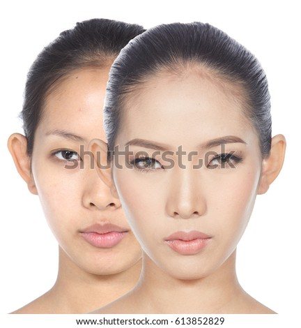 Asian Woman before and After make up and hair do style. no retouch, fresh face with acne, skin moles, fresh face with acne, skin moles, wart then good base and foundation cosmetic #613852829