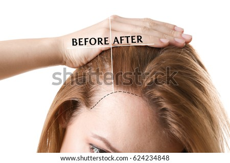 Woman before and after hair loss treatment on white background #624234848