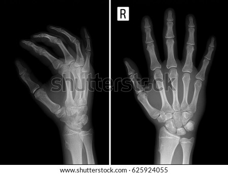 X-ray of the Multiple exostoses of the hand. #625924055