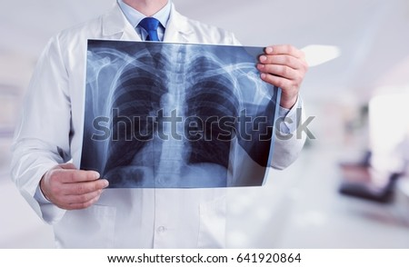 Doctor look x-ray. #641920864