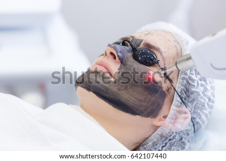 Carbon face peeling procedure. Laser pulses clean skin of the face. Hardware cosmetology treatment. Process of photothermolysis, warming the skin, laser carbon peeling. Facial skin rejuvenation. Royalty-Free Stock Photo #642107440