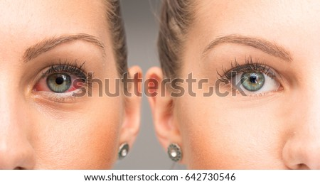 Red eye before and after the use of eye drop #642730546