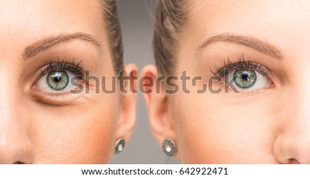 Eyes of woman with and without eye bag before and after cosmetic treatment #642922471