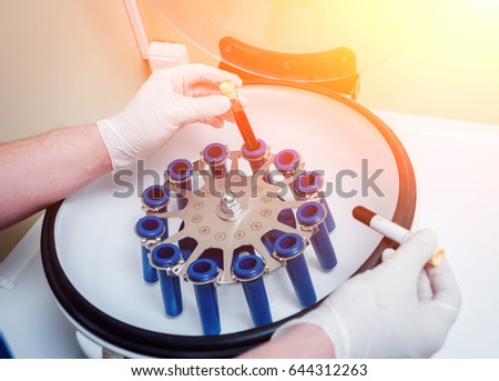 Platelet-Rich plasma preparation. Tube with blood in hands. Centrifuge. Background #644312263