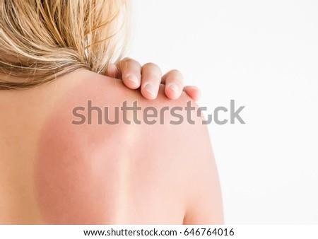 Woman's back skin hurt from sun burn.
