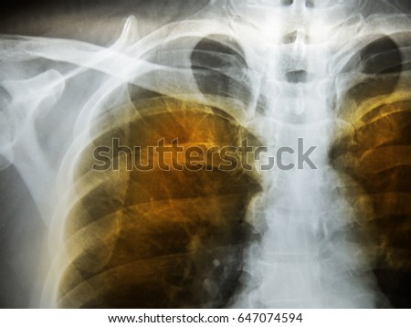 Emphysema patient ches x-ray. Royalty-Free Stock Photo #647074594