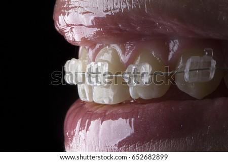 Beautiful macro shot of white teeth with aesthetics braces.  #652682899