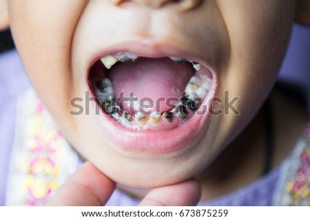 close up shot of baby teeth with caries. #673875259