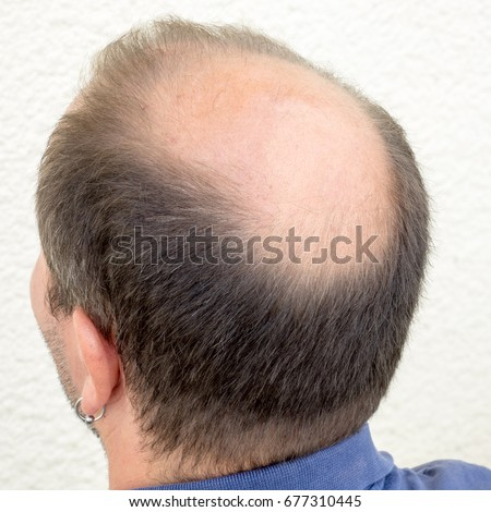 Baldness alopecia man loss haircare #677310445