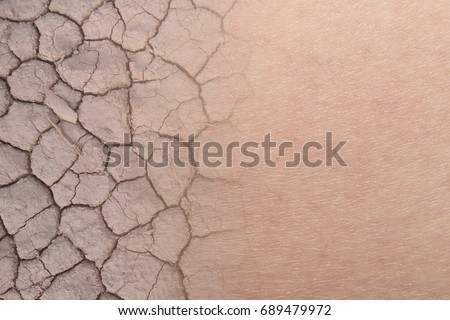 close-up on dry woman skin texture with dry soil #689479972