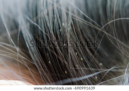 Lice eggs on the child's head cause head itching. Girls with long hair are more likely to develop lice than short hair.