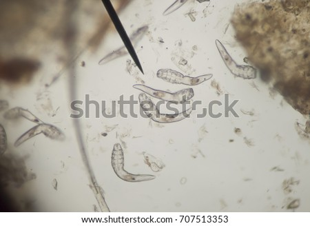 Demodex parasite under the skin in dog take a photo from microscope #707513353