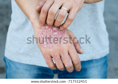 Man scratch oneself, dry flaky skin on hand with psoriasis vulgaris, eczema and other skin conditions like fungus, plaque, rash and patches. Autoimmune genetic disease. #717552451